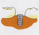 インプラント手術の流れ3